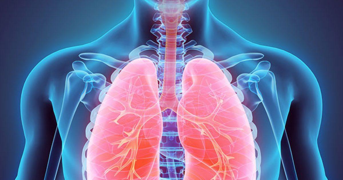 Tuberculosis, #TeamKJ